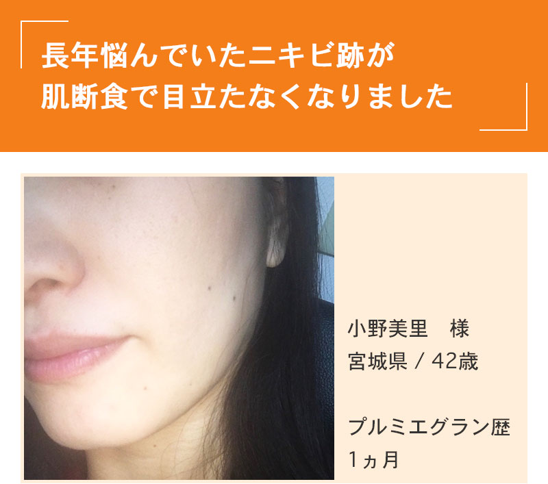 肌断食 ニキビ SP画像(o.m様)
